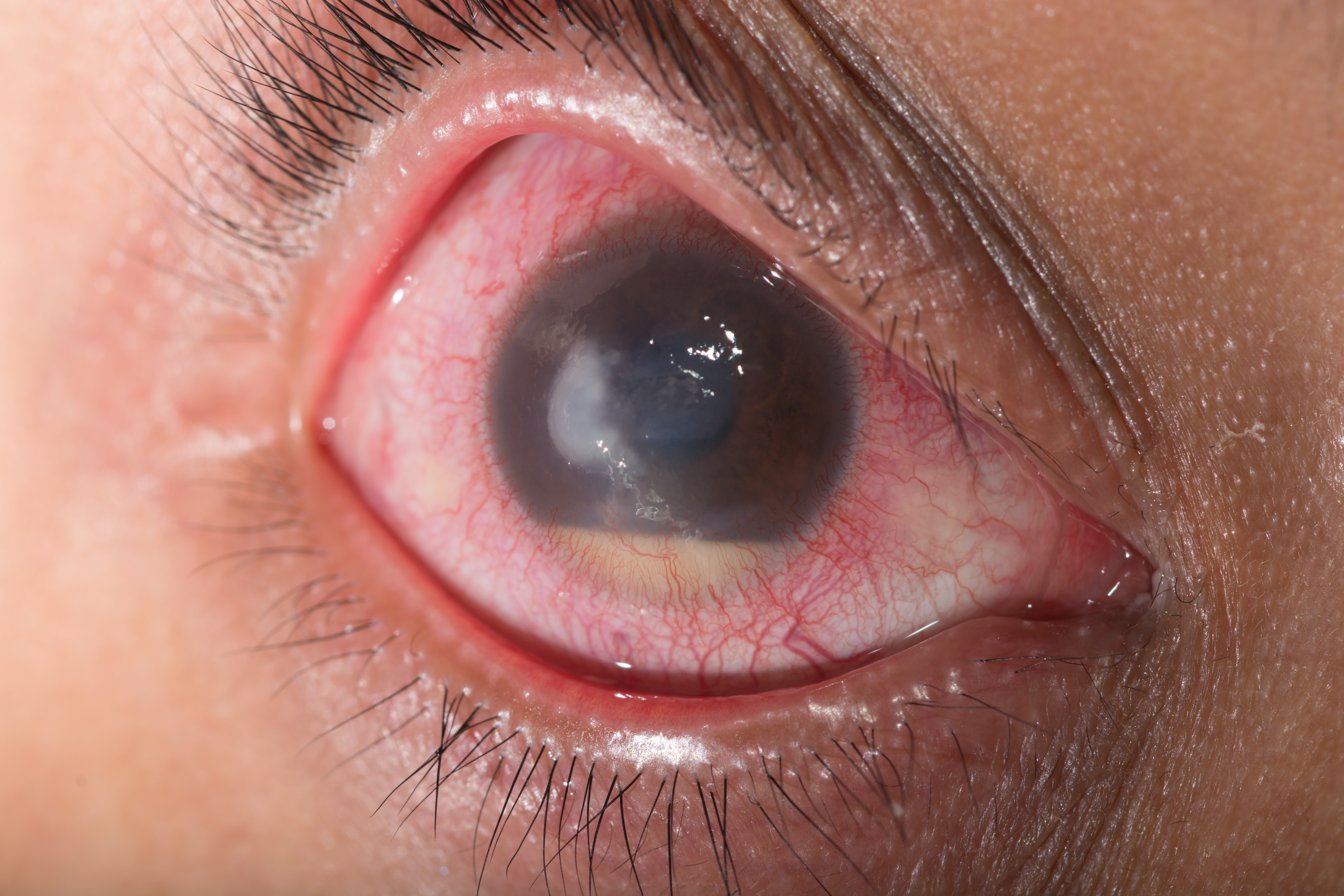 Glaucoma Relief: New Wave Of Drugs Poised To Shake Up ... - photo#43