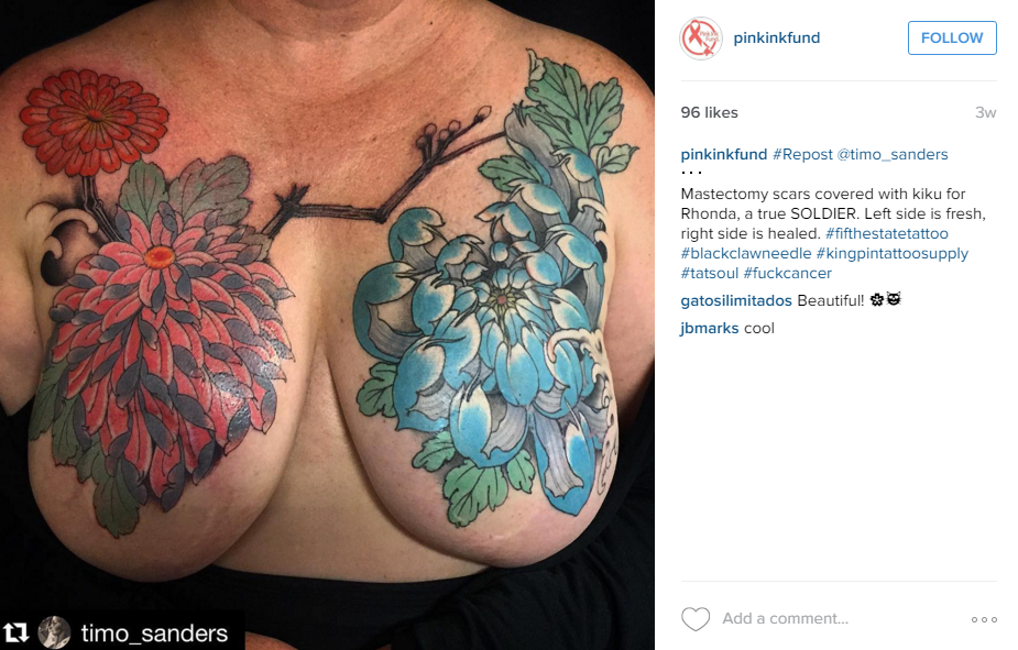 39 pink ink fund 39 post mastectomy tattoo account reactivated for Areola tattoo after mastectomy