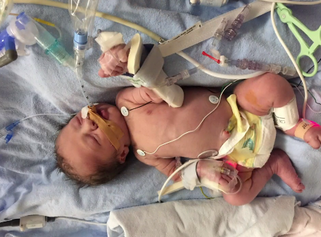 Unborn Baby With Heart Defects Undergoes Life Saving
