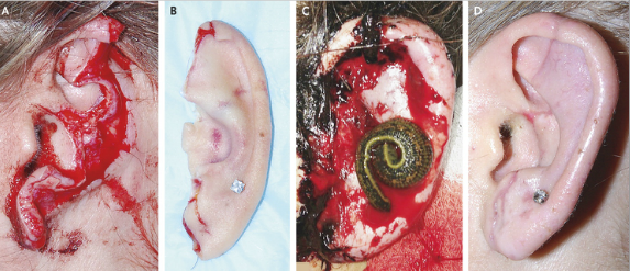 Leeches aid ear reattachment for woman after dog attack