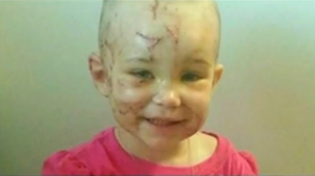 Kenzi shows scars from pit bull attack