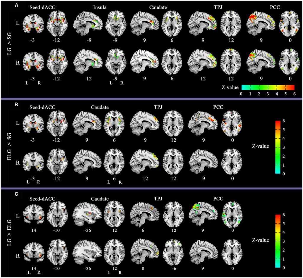 Brain scans across all three groups