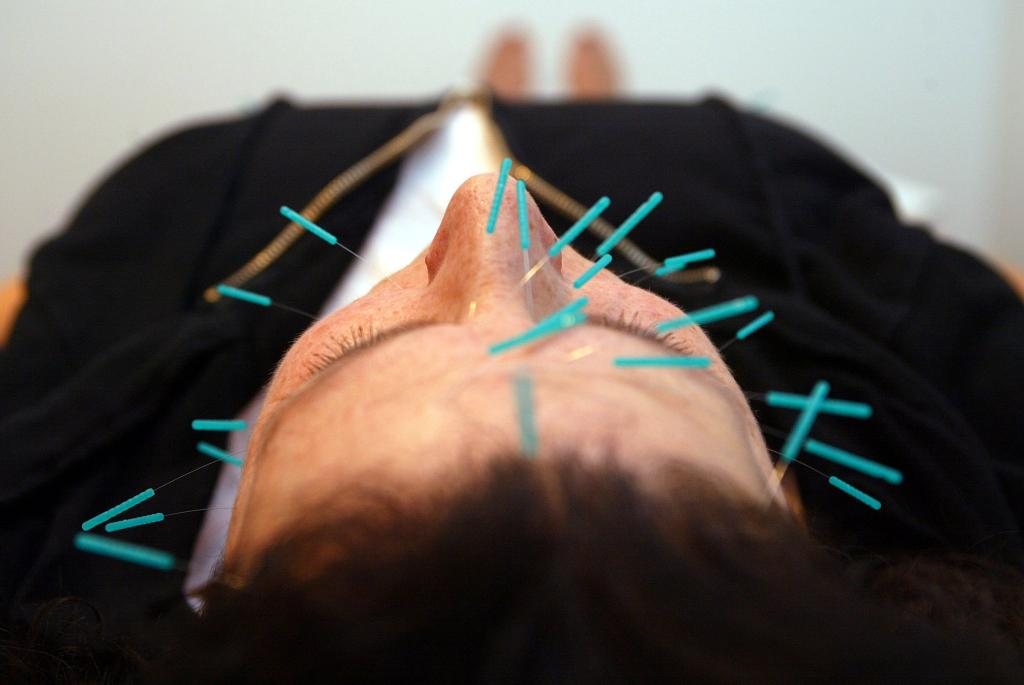 Acupuncture can help pre-dementia patients recover some memory loss