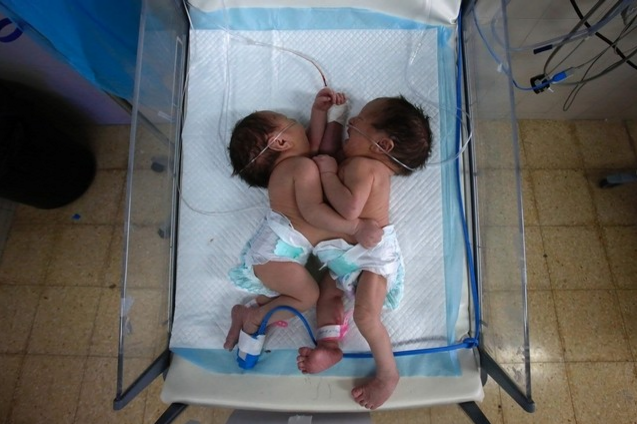 Conjoined Twins West Bank