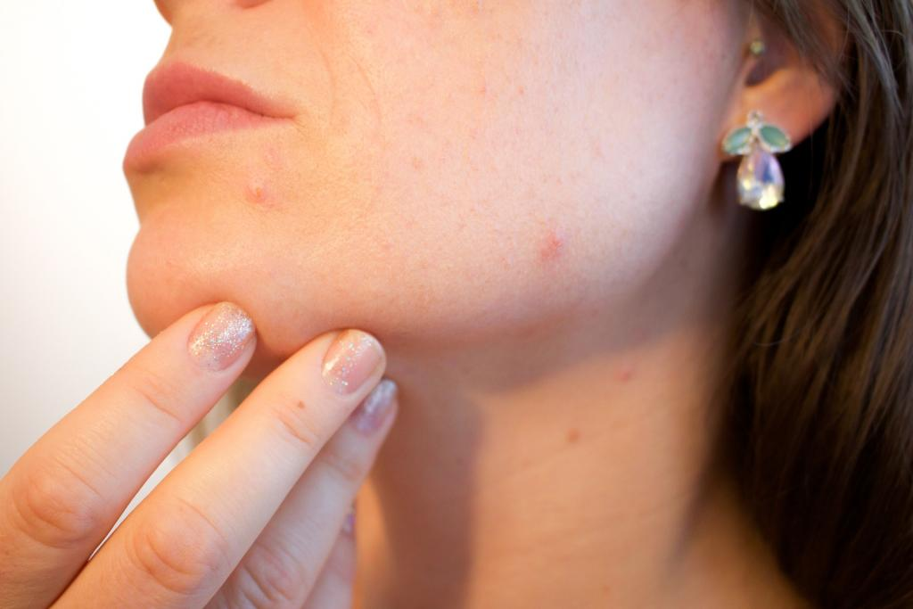 New Acne Vaccine Could Prevent Its Development