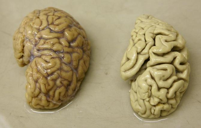 One hemisphere of a healthy brain (L) is pictured next to one hemisphere of a brain of a person suffering from Alzheimer disease
