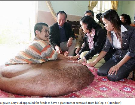 Nguyen Duy Hai appealed for funds to have a giant tumor removed from his leg.