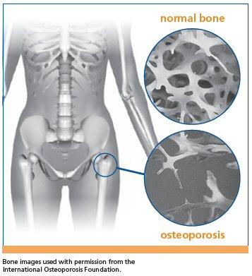 The effects of osteoporosis