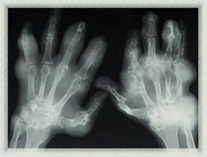 Image showing an x-ray of arthritic hands.