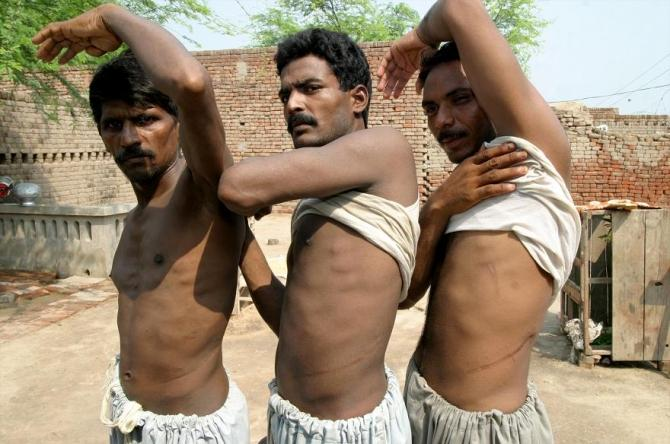 Mohammad Khalid (L), Mohammad Ijaz (C) and Liaqat show scars left on their bodies after they sold their kidneys