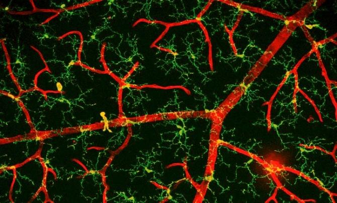 The green cells around the red blood vessels are called microglia.