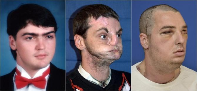 Combination of undated handout photos released by the University of Maryland Medical Center shows face transplant patient Richard Norris at various stages of his life