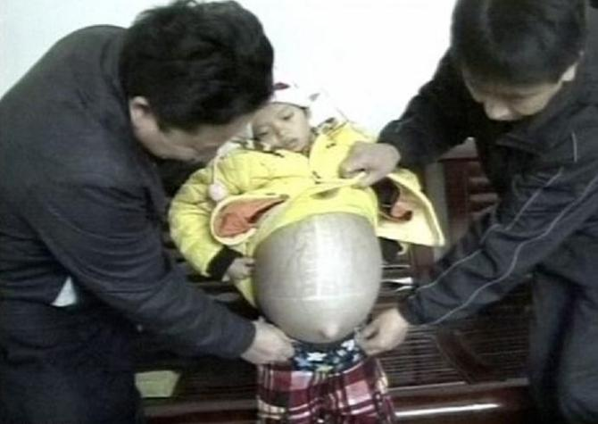 Meng Caixiu of Guizhou Province in southwest China had been diagnosed with a liver cyst, an abnormal thin-walled fluid-filled sac that develops along with the organ, that keeps growing.