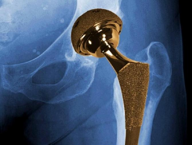 X-ray of the hip region with a metal-on-metal implant.
