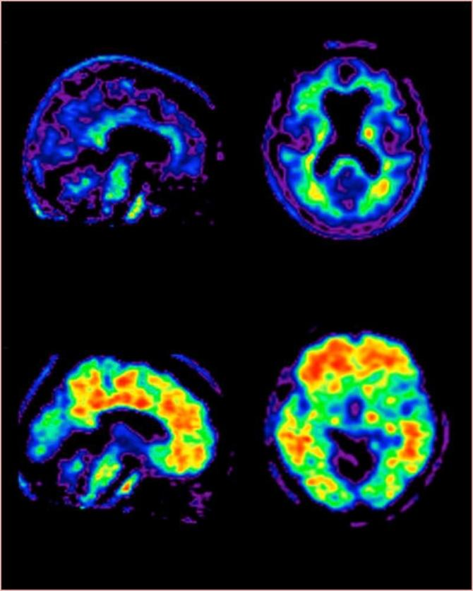African Americans At Higher Genetic Risk For Alzheimer's