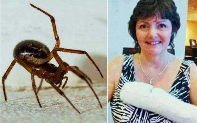 Doctors think that the false widow spider (Steatoda nobilis) was responsible for the bite on Catherine Coombs' arm.