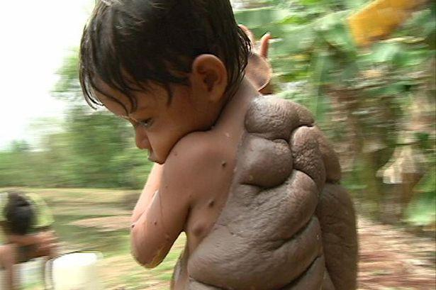 6-year-old Didier Montalvo's giant mole on his back, which gave him the nickname 'Turtle Boy', was recently removed by UK plastic surgeon Neil Bustrode.