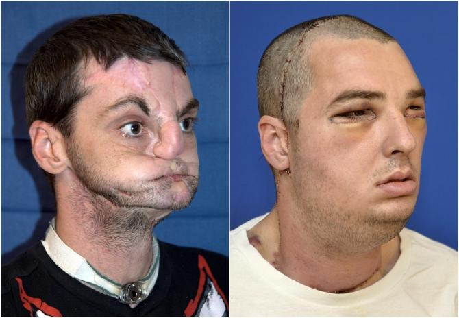 Richard Norris, face transplant