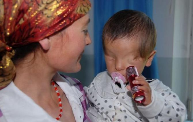 The boy was born with smooth skin in the sockets of where his eyes should have been, but since he was just eight months old, little Marwanijung has loved shining a flashlight at his face because he could still sense light.