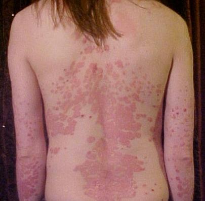 MrRock shared an inspiring story of how he cured psoriasis on elbows by 99 1