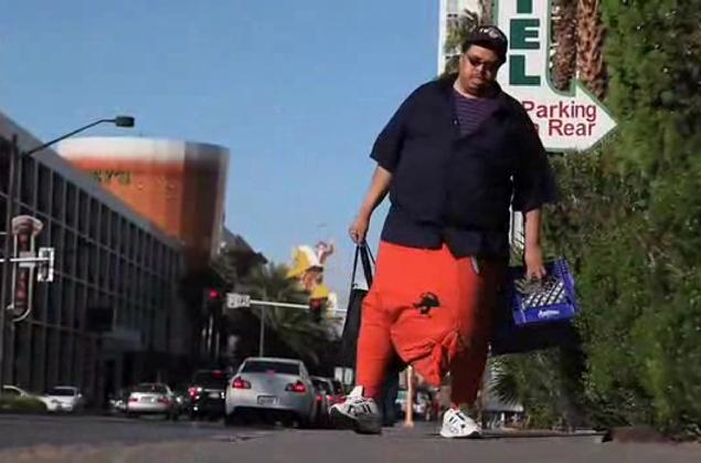 Las Vegas Man Removes 134 lb scrotum through surgery