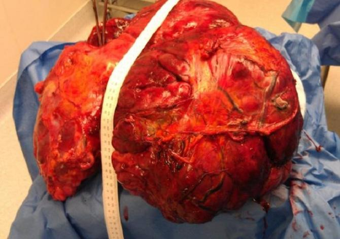 Doctors at Riverview Medical Center in New Jersey removed a 51-pound cancerous tumor from a 120 woman who arrived at the hospital with stomach pains.
