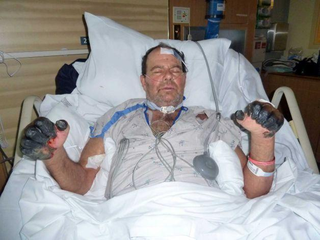 This photo was given by the Gaylord family was taken July 6, 2012, at a hospital in Bend, Ore., and shows Paul Gaylord as he recovers from the plague.