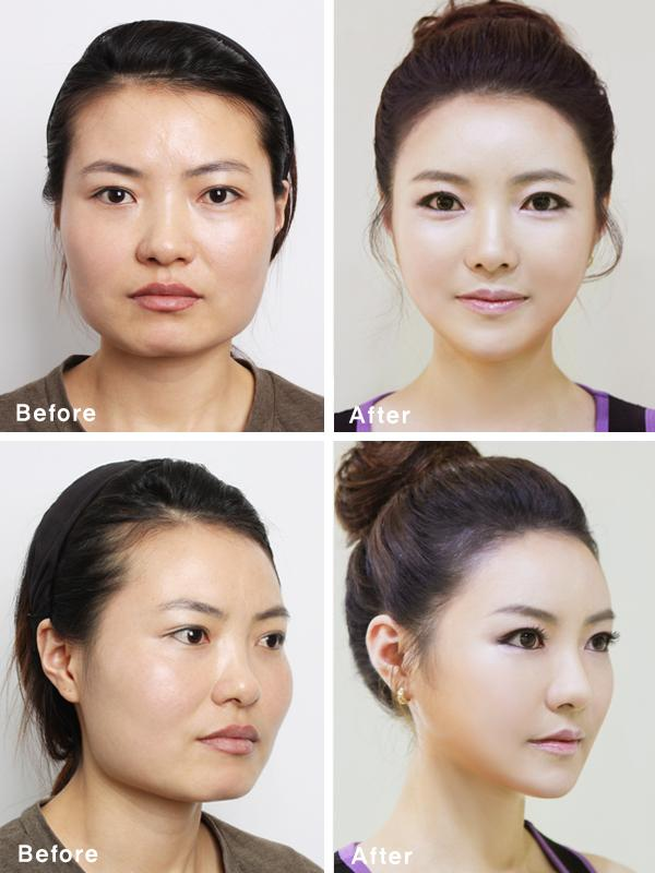 South Korean Plastic Surgery Craze Blamed For Creating ...