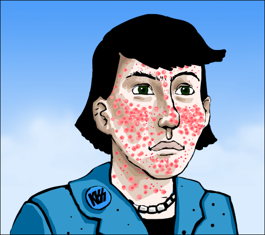 Cartoon of severe acne.