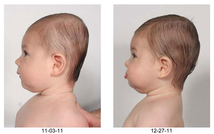 The Baby With A Flat Head How To Reverse The Rising Tide