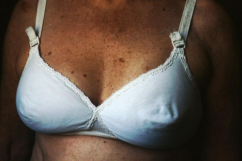 800px-Breast_reconstruction_(4)