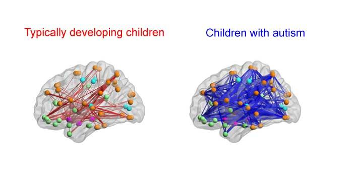 Kids With Autism Have Hyperconnected Brain Areas Could Brain Imaging One Day Diagnose The Disorder?  sc 1 st  Medical Daily : wiring brain - yogabreezes.com
