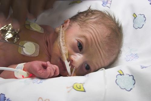 Boys At Higher Risk For Premature Birth Makes Them