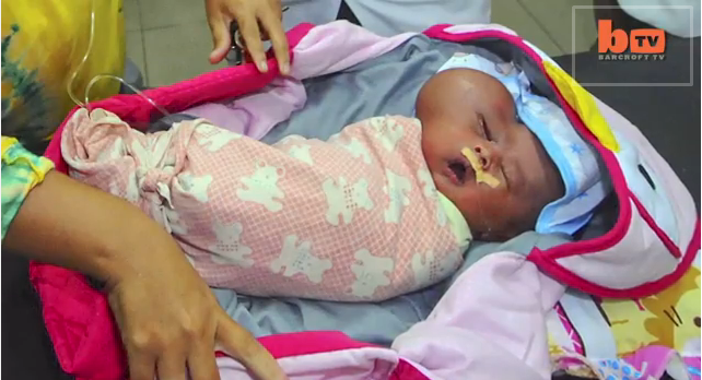 "Baby born with ""heart-shaped head"" has growing tumor on the side of his face"