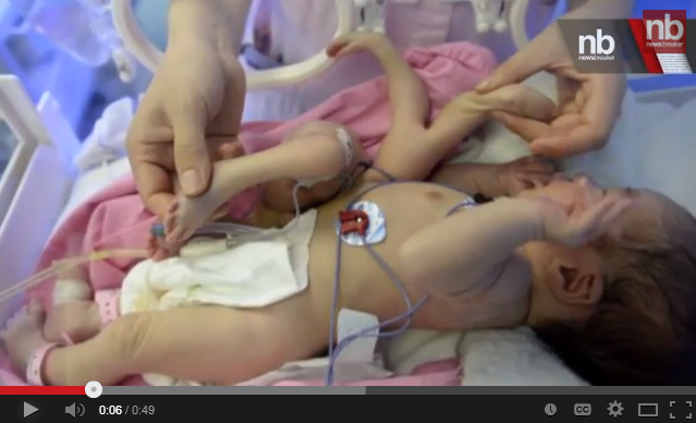 Baby born with extra limbs