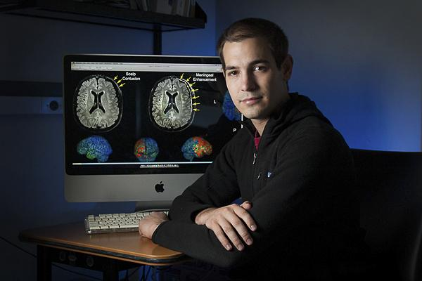 Researcher Theo Roth Discovers New Model For TBI Study