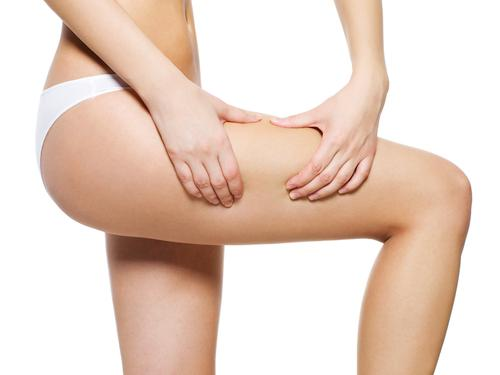 Woman applying cosmetic cream from cellulite on leg