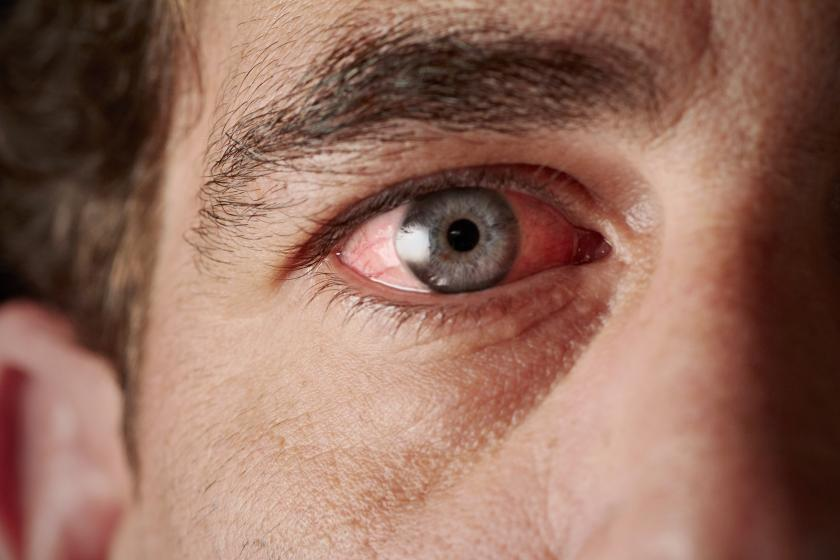 Ocular Sarcoidosis A Disease Causing Blindness Is 7 Times More Likely In Male Cigarette Smokers