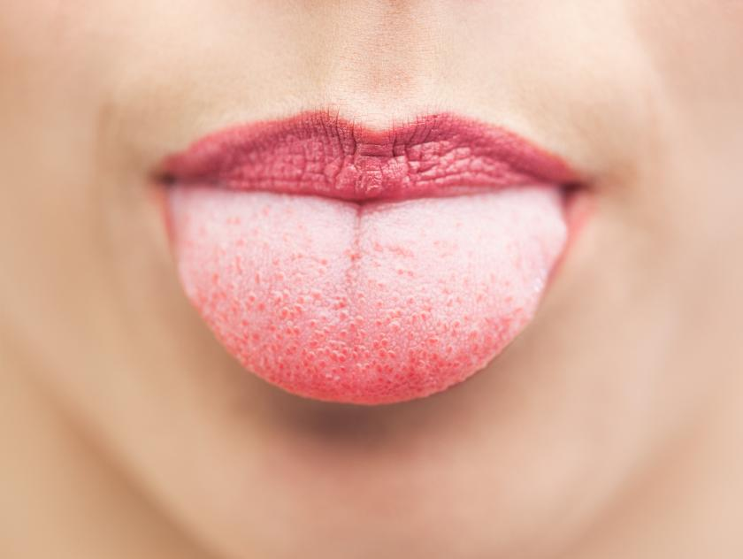 Tongue Tied? What Your Tongue's Appearance Can Tell You About Your ...