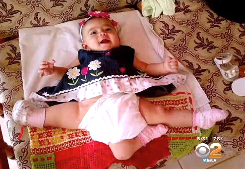 Girl with three legs set to have corrective surgery