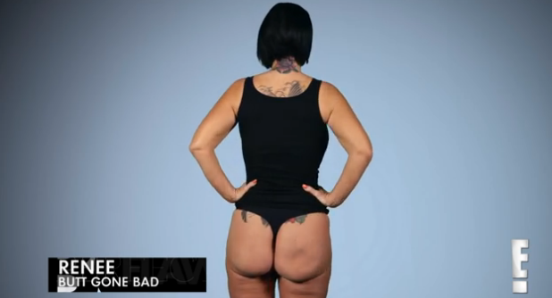 Former stripper speaks out about botched butt implants