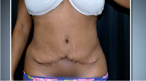 Mexican Tummy Tuck