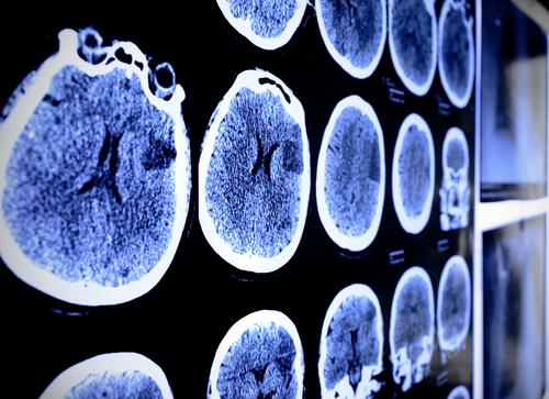 Stroke Sufferers May Have Future Treatmet Thanks To Stem Cells