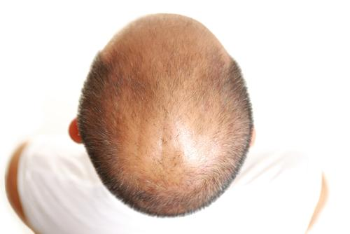 Treatment For Severe Baldness May Be On The Horizon