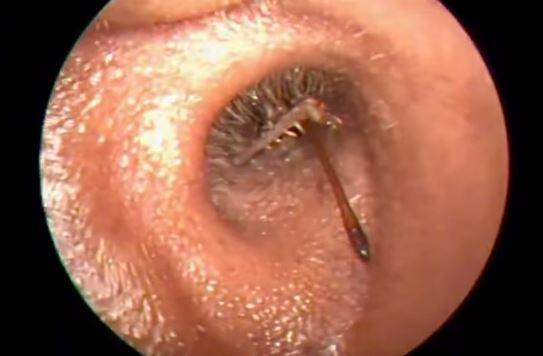 7 Living Things Found Inside The Ear Canal That Will Make