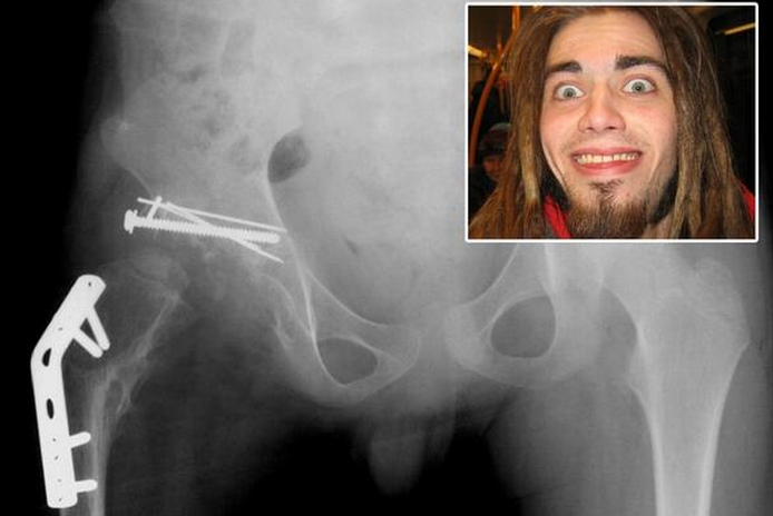 Man eats his own hip