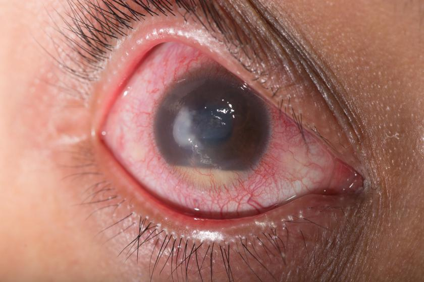 Glaucoma Relief New Wave Of Drugs Poised To Shake Up