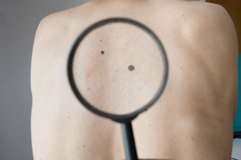 Melanoma May Be More Dangerous When It's Not Associated With Moles ...