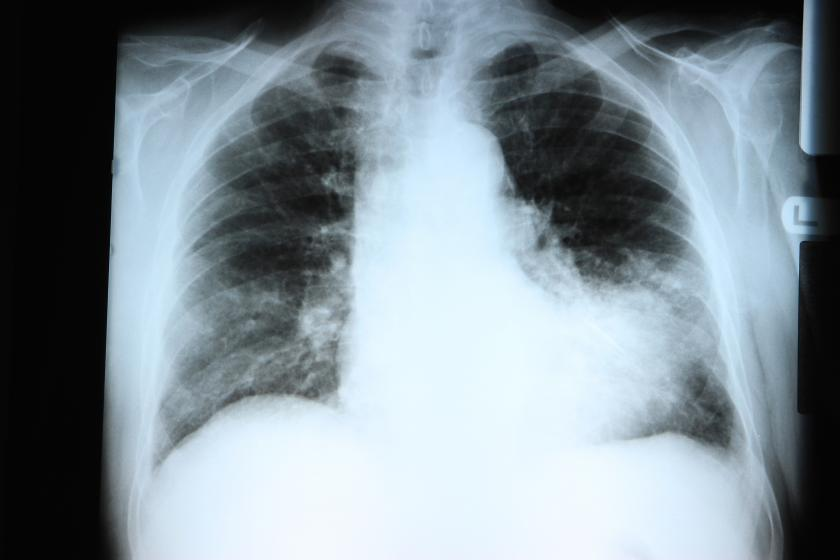pneumonia symptoms: signs that you're infected and what to do, Human Body