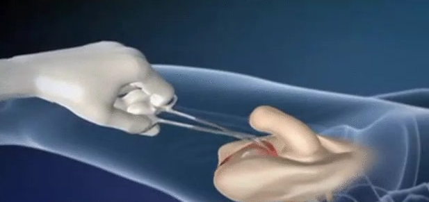 sex change surgery male to female video How Does Male To Female Transgender Surgery Work.